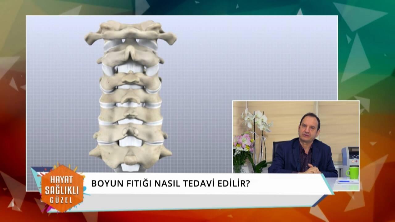 Boyun fıtığı nedir, nasıl tedavi edilir, ameliyat şart mı?