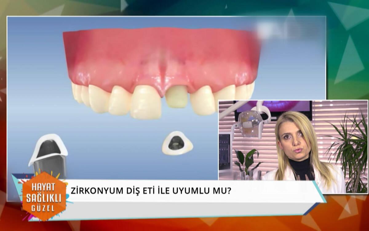 Zirkonyum diş nedir?