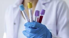Son dakika... Türkiye'nin koronavirüs tablosu: Son 24 saatte 58 kişi hayatını kaybetti