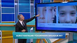 Alerji hastaları yüzlerinden anlaşılır mı?